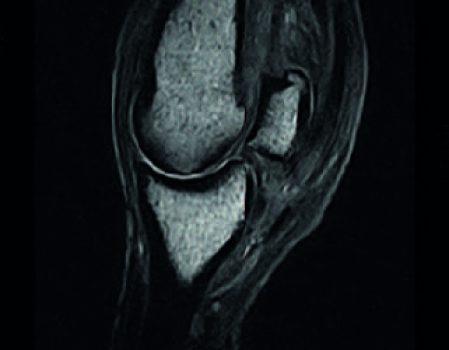 MRI img2