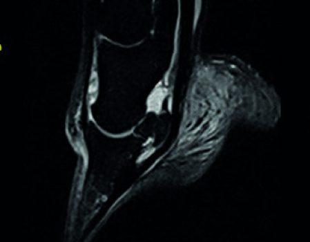 MRI img3